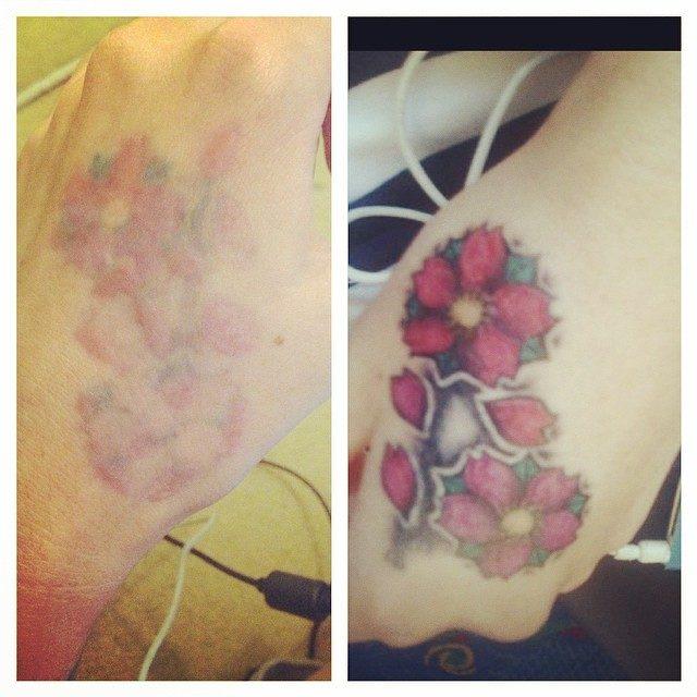 Tatuaggi – nuova denuncia contro Skinial – gravi lesioni alla pelle dopo la rimozione
